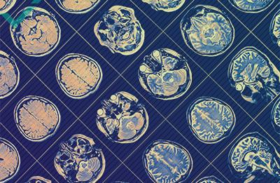 I vantaggi di un cervello multilingue